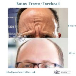Botox Frown/Forehead