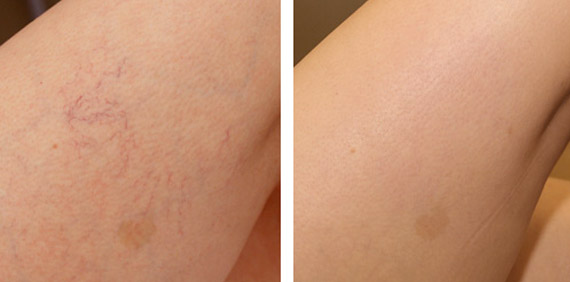 spider-veins-before-and-after1