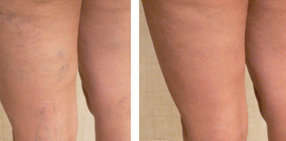 spider-veins-before-and-after2