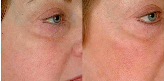 spider-veins-before-and-after3