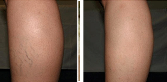 spider-veins-before-and-after4
