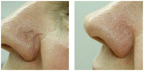 spider-veins-before-and-after5