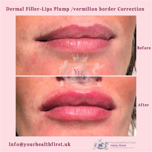 lips plump - Yourhealthfirst Clinic