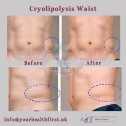 Cryolipolysis waist