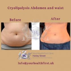 Cryolipolysis abdomen and waist