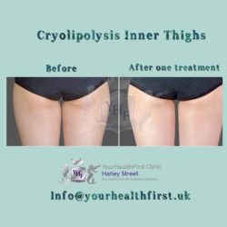 Cryolipolysis inner things