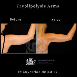 Cryolipolysis arms