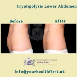 Cryolipolysis lower abdomen
