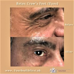 Botox Crows Feet