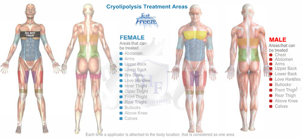 cryolipolysis treatment areas